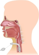 tracheostomy for obstructive sleep apnea