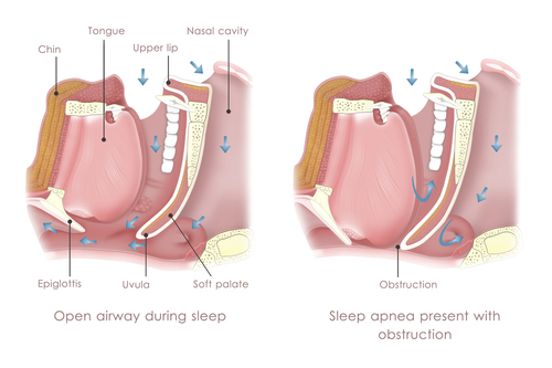 obstructive-sleep-apnea