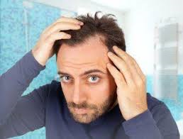 Stress and sleep loss can lead to hair loss.