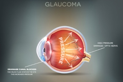 How does sleep apnea affect your eyes?