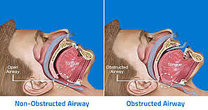 Image result for tmj and sleep