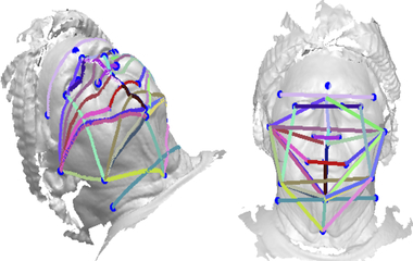 Study Suggests 3D Face Photos Could Screen For Sleep Apnea