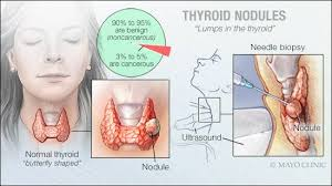 Is Your Thyroid Hurting Your Sleep?